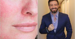 Rosto avermelhado no inverno por dermatologista Rafael Soares - Sortimentos.com